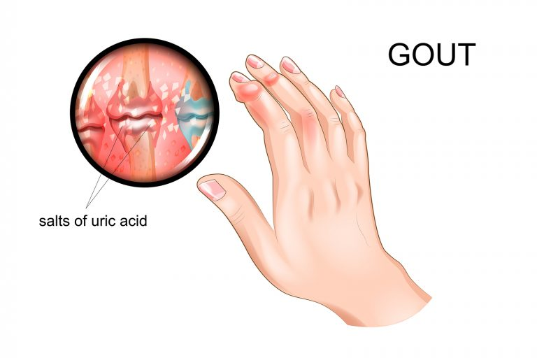 vector illustration of gout, arthritis of fingers