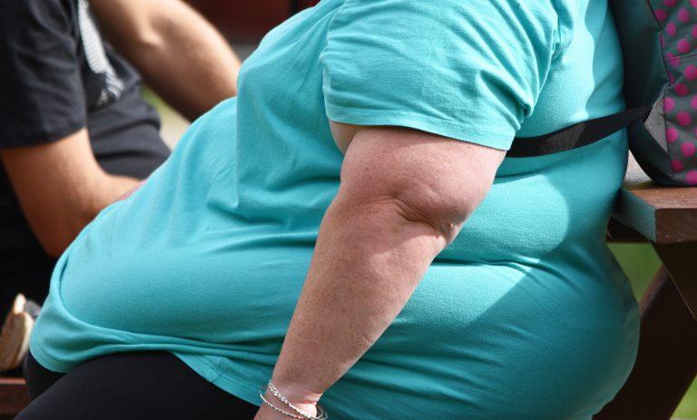 """Czy otyłość to tylko """"problem natury estetycznej""""?"""